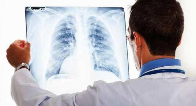 Что понимается под острым профессиональным заболеванием